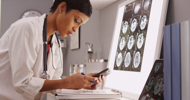 Young female doctor reviewing brain scan results